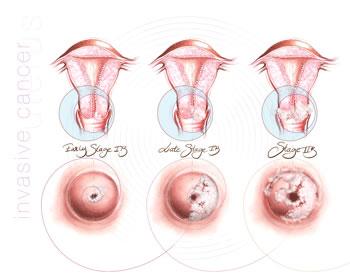 Quelle est la cause du cancer du col de l'utérus ?